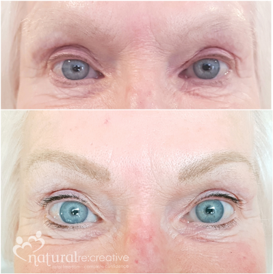 Healed Eyebrows and Lashline Enhancement