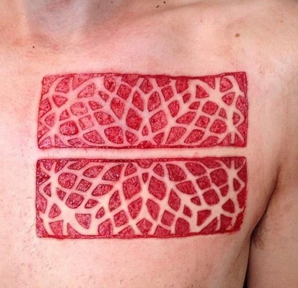 Micro skin peeling - Helsinki, Finland