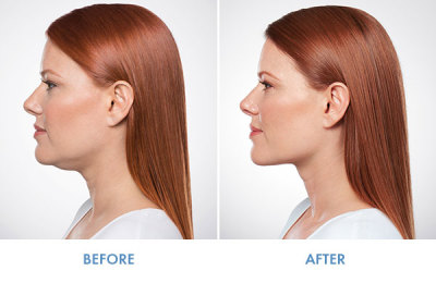 Kybella Fargo Dermphilosophy Model, Dermal Filler, Injectable, before and after