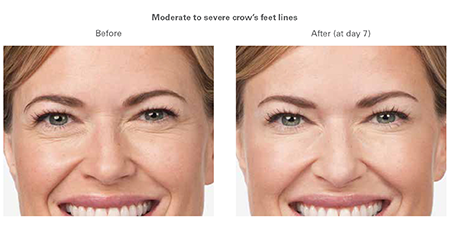 Botox Fargo DermPhilosophy Model, Injectables, before and after