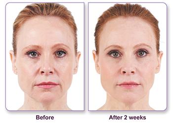 Dermal Fillers Fargo DermPhilosophy before and after