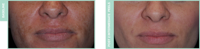 Chemical Peel Fargo DermPhilosophy Before and After