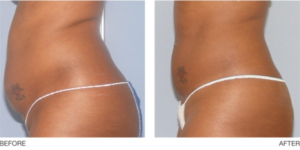 UltraShape Fargo DermPhilosophy Before and After