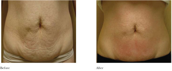 VelaShape Fargo DermPhilosophy Before and After