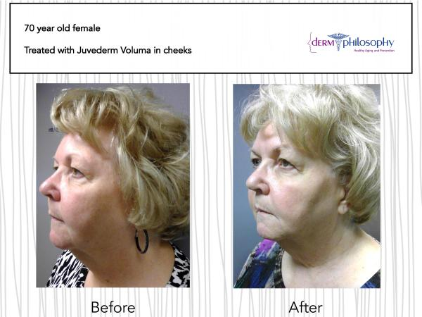 before and after Juvederm Fargo