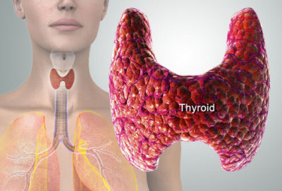Hashimoto's Thyroiditis - A Naturopathic Doctor's Approach