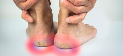 Ageing Feet