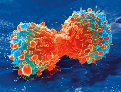 "alt=""Cancer cell"""