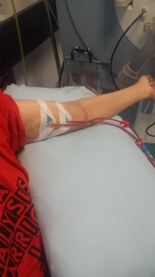 This is a picture of my are using my fistula for the first time for hemodialysis