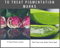 pigmentation marks, natural remedies, age spots, say no to commercial products, diy home remedies, rose water, aloe vera,  treat pigmentation marks naturally