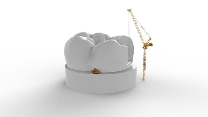 Crowns - Different Materials Being Used in Dentistry Today