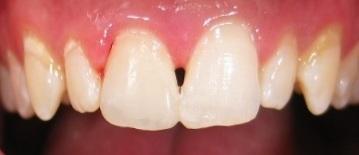 Broken tooth with resin repair