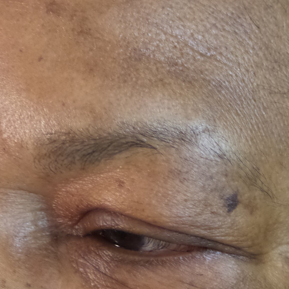 Before Brow Procedure