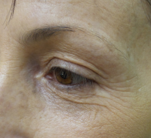Before Brow and Lower Eyeliner Procedure