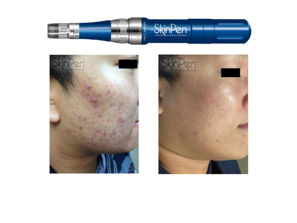 Acne Scarring, 3 treatments.