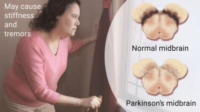 Positive Outlook Critical For Parkinson's Patients