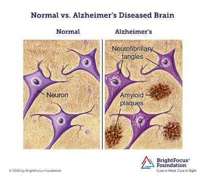Novartis Uses New Tactic In Alzheimer's Drug Testing