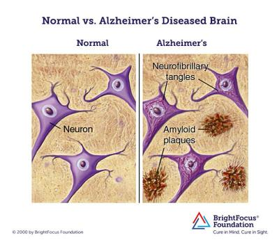 Novartis Uses New Tactic In Alzheimer's Drug Testing