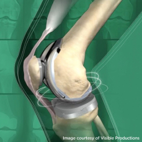 Knee And Hip Replacement Seminar On Wednesday May 24 At Embassy Suites