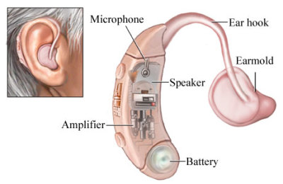Senators Warren & Grassley Introduce The Over-The Counter Hearing Aid Act Of 2017
