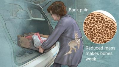 Study Shows Anti-Inflammatory Foods Naturally Slow Bone Loss In Women