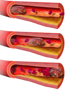 Huge Potential For #Xarelto Helping Those With Clogged Arteries