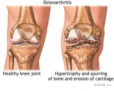 Losing Weight Can Help Those With Osteoarthritis