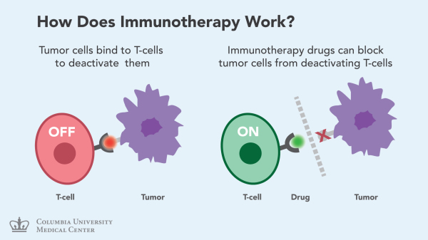 Immunotherapy Cancer Treatments Moving Into High Gear