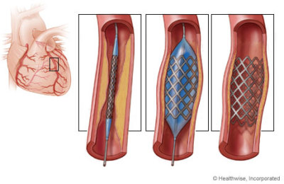 Controversy Over The Use Of Stents To Unblock Clogged Arteries