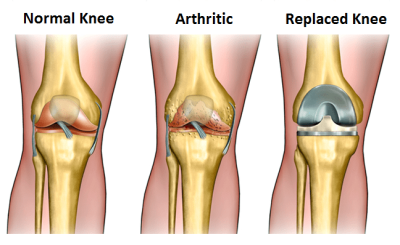 Many Knee Surgeries May Be Unnecessary