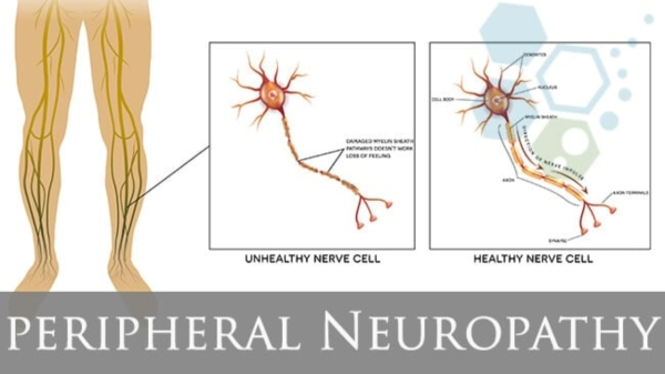 New Hope For Diabetics With Peripheral Neuropathy