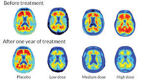Researchers Have High Hopes For New Alzheimer's Drug Called Aducanumab