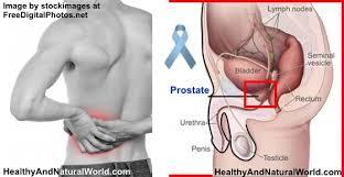 New Prostate Cancer Test Can Tell You How Aggressive The Cancer Might Be