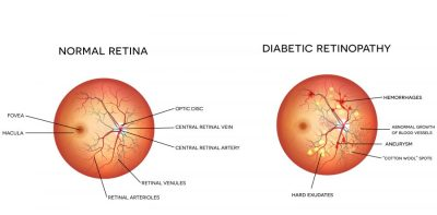 Diabetes Can Cause Retinopathy, Which Can Eventually Lead To Blindness