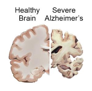 Drug Trials Halted On Promising Alzheimer's Experimental Drug