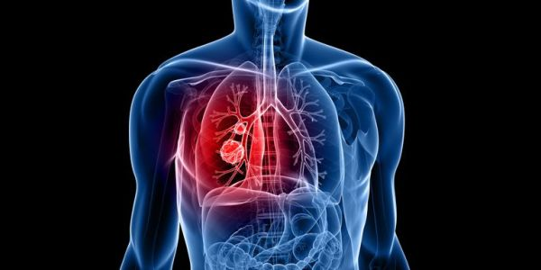 Many Advances In Lung Cancer Treatment Announced By Researchers