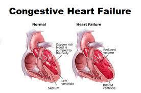 New Hope For Those With Congestive Heart Failure