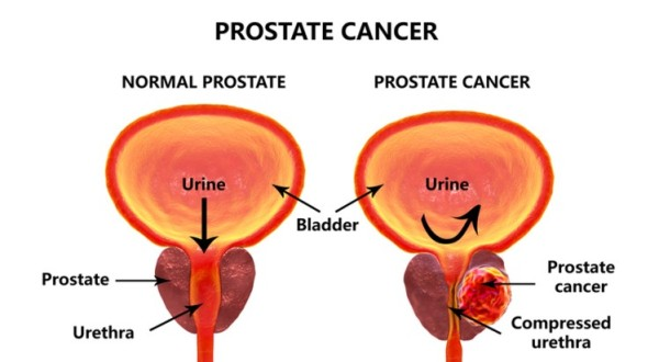 Prostate Removal Recommended For Men With Advanced Prostate Cancer