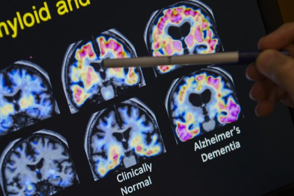 Alzheimer's Association Funding Study To Prove High Blood Pressure Related To Dementia