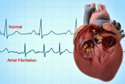Heart Disease Research Hits A New Milestone