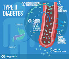 Type 2 Diabetes Patients Need To Be Extremely Careful With Their Diet