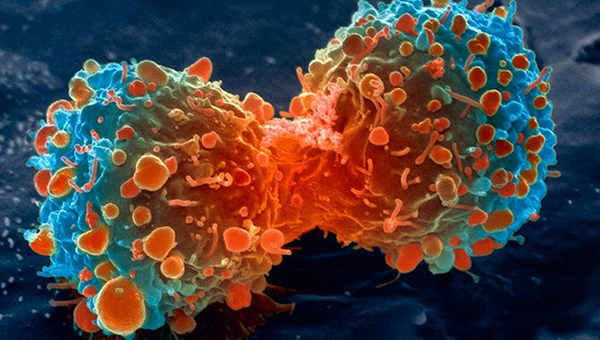 Physical Activity Can Ward Off Some Types Of Cancer
