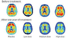 CHOMP Holding Alzheimer's Family Support Group November 14