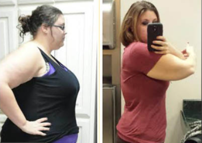 Weight Loss Success Before and After photo of a patient of Dr. Jeff Henke