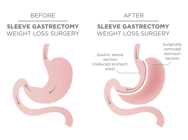 Sleeve Gastrectomy also called a Gastric Sleeve removes a portion of the stomach