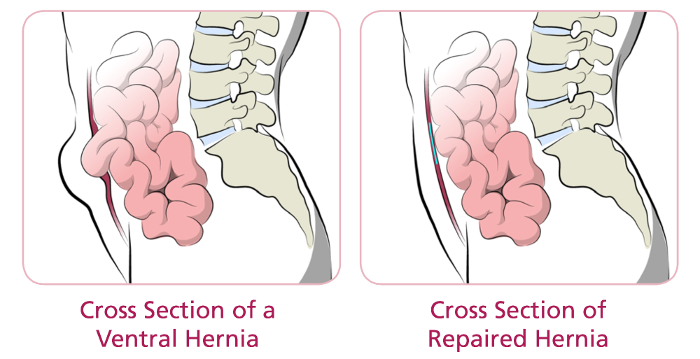 Ventral, Umbilical or Incisional Hernia