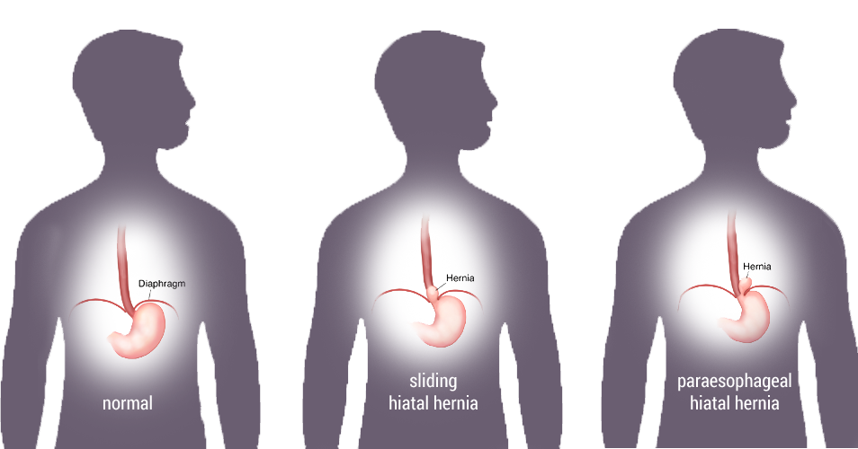 Depiction of normal stomach completely below diaphragm, a sliding hiatal hernia where the stomach slides up, and a paraesophageal hiatal hernia where stomach comes up beside the esophagus