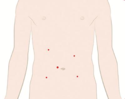 Small Intestine and Colon Surgery