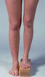 Measuring a leg length discrepancy
