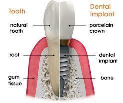 Senior Dental Special for February
